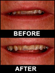 Peterborough dental treatment case study